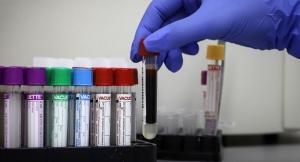 Пациент с коронавирусом умер в Гудаутской ЦРБ