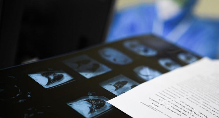 Двое пациентов с COVID-19 скончались в Абхазии